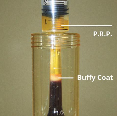 Estrazione del concentrato piastrinico PRP