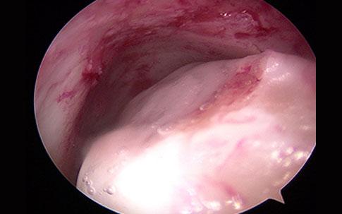 ACIC tecnica artroscopica in caviglia