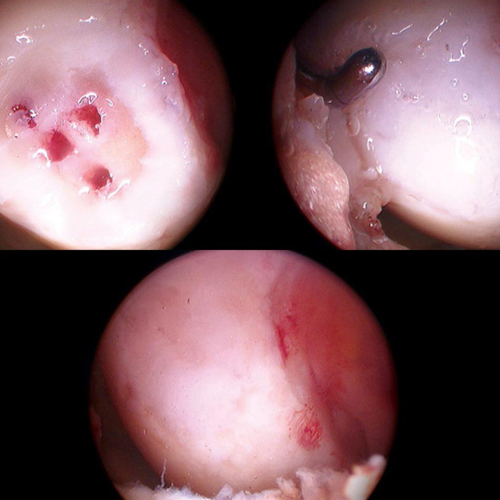 Atelocollagene di tipo I per riparazioni tissutali