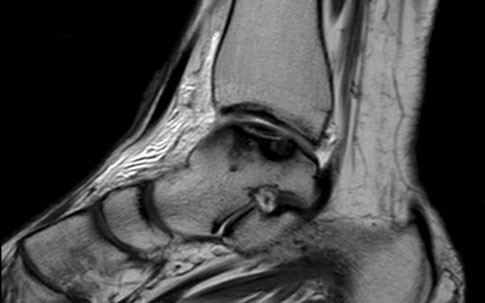 Sagittal ankle MRI of a patient included in the study